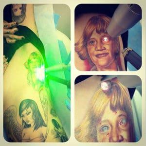 Kat Von D Having Jessie James Tattoo Removed