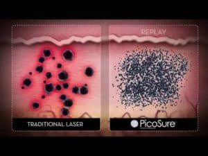 PicoSure Laser Tattoo Removal